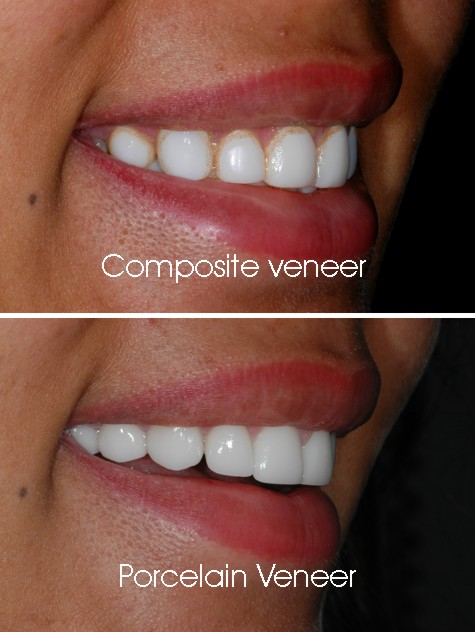 ceramic-veneer-vs-composite-veneer