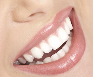 Santa Monica cosmetic dentistry