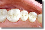 Santa Monica Dental Veneers