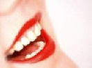 Porcelain Veneers -